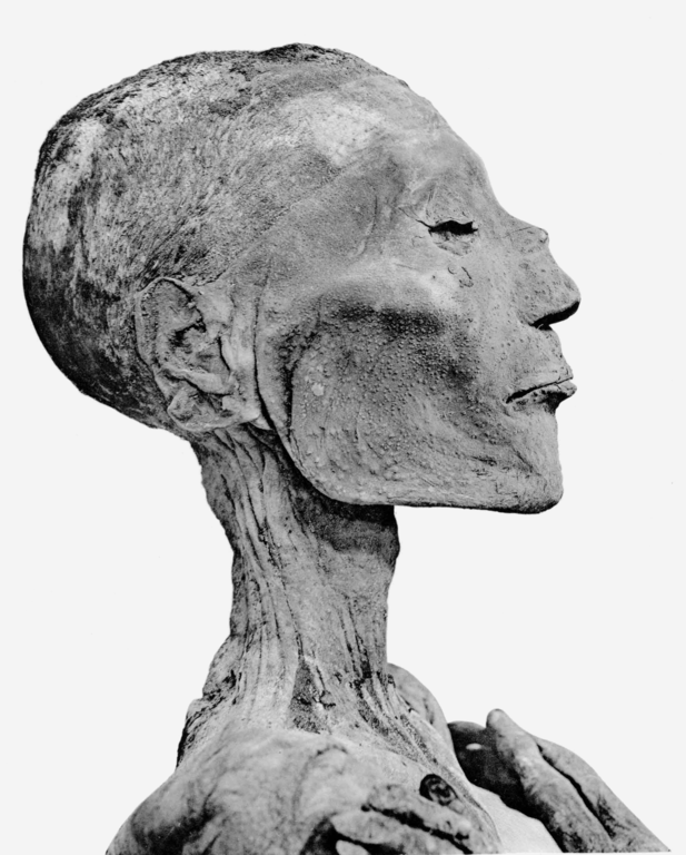 Ramses V's mummified head